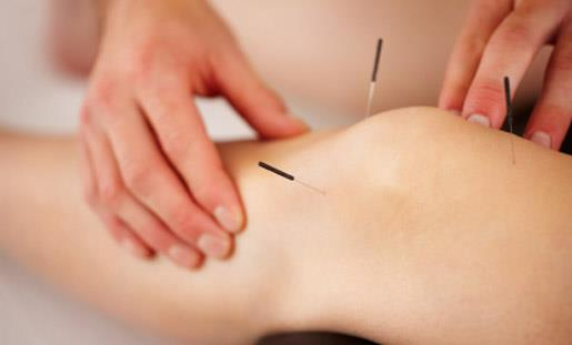 A Guide to Understanding Acupuncture